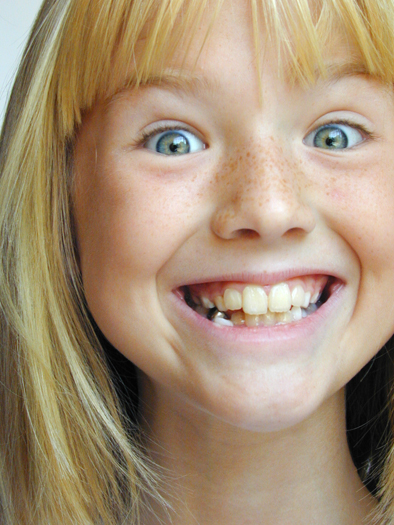 A freckle-faced young girl who looks happy and excited with a wide, toothy grin