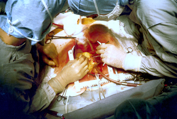 Coronary artery bypass surgery by Jerry Hecht