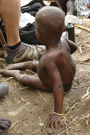Waiting At The Feet Of Help. Young African child sitting at a helper's feet.